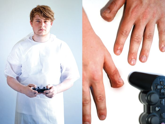 Травми геймерів (9 фото)